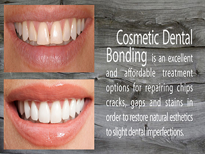 Cosmetic dentist in bethesda md chevy chase md somerset treatments around cosmetic dental bonding requires little to no prepping and preserves most of the natural tooth structure and its fast too solutioingenieria Gallery