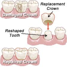 Restorative Dentistry in Bethesda MD| Chevy Chase MD