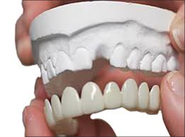 dental veneers by dentist in bethesda md