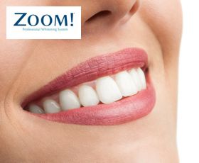 teeth whitening by dentist in bethesda md